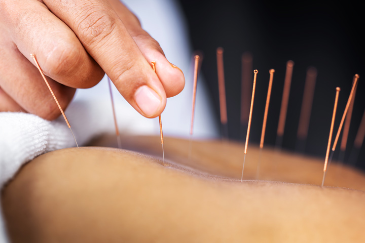 close up of acupuncture therapy - holistic therapies